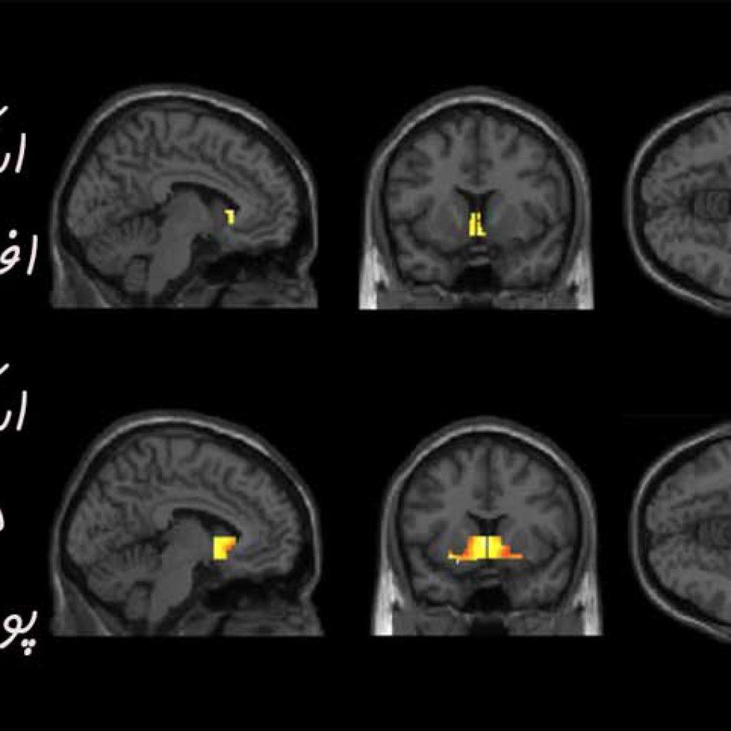 اسکن مغزی معادان به پورنوگرافی